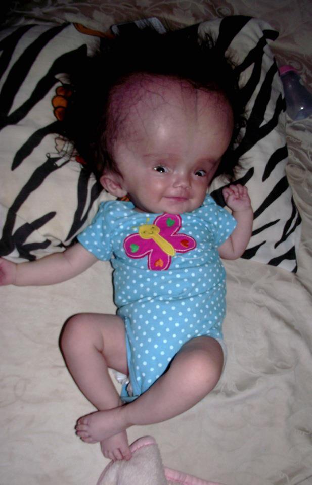 Hidrocefalia en adultos